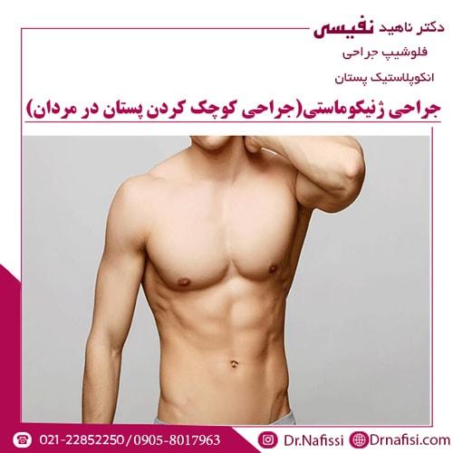 جراحی ژنیکوماستی (جراحی کوچک کردن پستان در مردان)