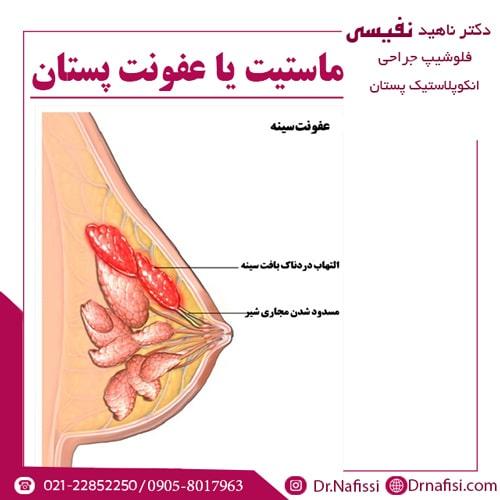 ماستیت یا عفونت پستان