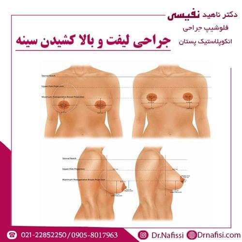 جراحی لیفت و بالا کشیدن سینه