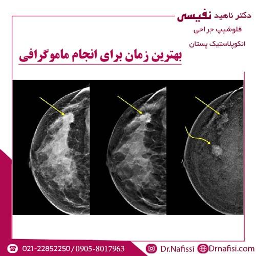 بهترین زمان برای انجام ماموگرافی