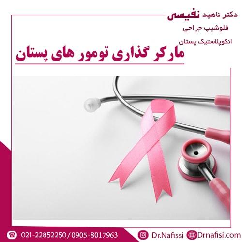 مارکر گذاری تومور های پستان