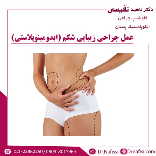 عمل جراحی زیبایی شکم (ابدومینوپلاستی)
